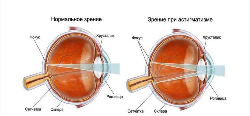 глаз,астигматизм,оптика,очки,линзы