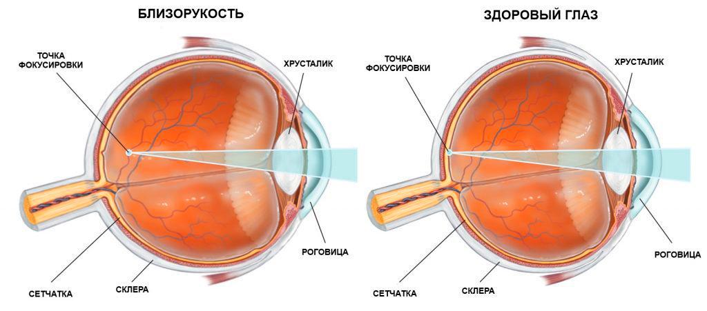 глаз,близорукость,оптика,очки,линзы