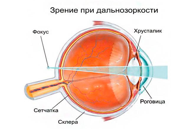 глаз,дальнозоркость,оптика,очки,линзы
